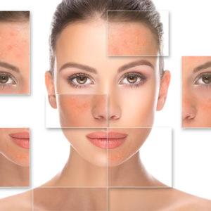 Remoção de pintas, cistos e cânceres de pele