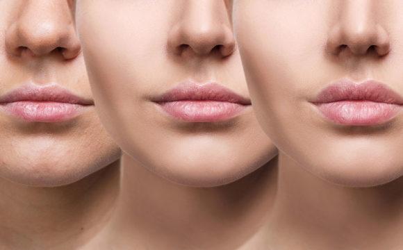Veja os cuidados com a estética facial para se manter jovem
