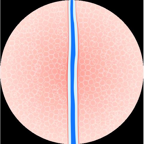 A substância faz com que as veias sejam desintegradas e absorvidas pelo organismo.